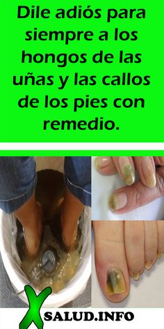 Arturo Bedoya's media content and analytics Home Medicine, Fruit Popsicles, Keto Diet For Beginners, Fresh Fruit, Manicure, Remedies, Homemade, Health, Chai