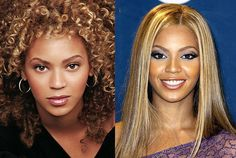 Beyonce- nose job before-after-plastic-surgery. The objective is to have subtle changes, not drastic.