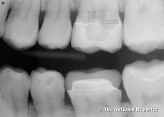 """Dec 14, 2009 - Wally Hanson, 67 year old retired police officer from Albany NY. While at his dentist for a routine check up, a mysterious metallic object was discovered in his tooth. """"It's a tiny electronic implant. It wasn't there the last time I had my teeth X-rayed a year ago."""" His dentist, Dr. Fred Wallington said, """"I never saw anything like this. There is no opening anywhere near the implant. No scarring or filling, it's like it just grew there."""" Click for more."""