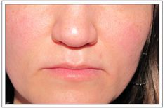 Learn about Treatment for Rosacea http://qoo.ly/nvrgn