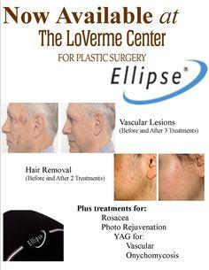 7 Best Ellipse IPL images in 2018   Skin clinic, Ipl laser, Ipl machine