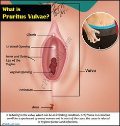 What is Pruritus Vulvae?