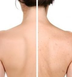 How To Get Rid of Back Acne? In the human anatomy, our back is one of the most unlikely places for acne to crop up. But, sadly, back acne cause more severe