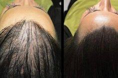 Magický recept pre rýchlejší rast vlasov, ktorý bojuje aj proti plešatosti…