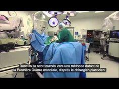 un Homme de 87ans à une mains collé a son ventre - #Accident, #AccidentBizarre, #VidéosBizarre - http://www.newstube.fr/un-homme-de-87ans-a-une-mains-colle-a-son-ventre/