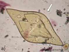 Gran cristal de ácido úrico comenzando a maclarse Uric Acid, Personalized Items, Crystals