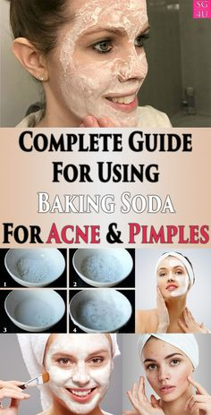 Complete Guide For Using Baking Soda For Acne & Pimples Skin Care acne remedies Baking Soda For Acne, Baking Soda Shampoo, Baking Soda Uses, Baking Soda Pimple, Baking Soda Acne Scars, Baking Soda Face Wash, Baking Soda Facial, Face Baking, Baking Soda Scrub