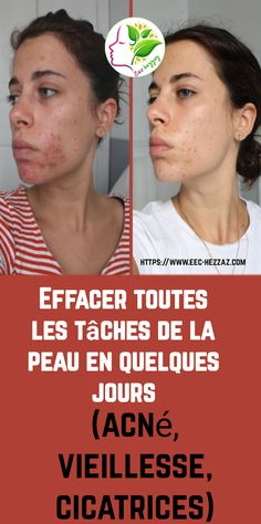 Effacer toutes les tâches de la peau en quelques jours (acné, vieillesse, cicatrices) Pigmentation, Solution, Make Up, Movie Posters, Natural Beauty Tips, Diets, Skin Care Remedies, Skin Tips, Skincare Packaging
