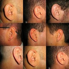 The severity of tinnitus varies from one sufferer to another and it is important to remember that though you can find a way to live with t. Impacted Ear Wax, Iris Recognition, Tricyclic Antidepressant, Tinnitus Symptoms, Cognitive Therapy, Alternative Treatments, Hearing Aids, How To Relieve Stress, How To Fall Asleep