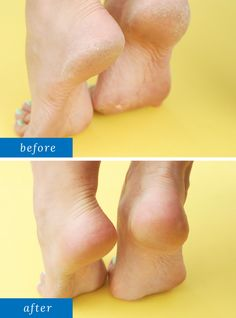 Listerine Foot Soak - 1 cup Listerine (or any antiseptic mouthwash), 1 cup vinegar 2 cups warm water