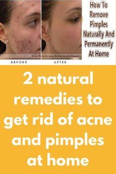 2 natural remedies to get rid of acne and pimples at home today I am sharing best two remedies to get rid of acne and pimples permanently at home in just a few days, you can choose on the basis of the subject to availability. 1st remedy – Ingredients, you will require- 3-4 garlic cloves paste 1 pinch of turmeric powder Method- Add the above ingredients in … How To Remove Pimples, Remove Acne, How To Get Rid Of Acne, Back Acne Remedies, Pimples Remedies, Natural Remedies, Best Anti Aging, Anti Aging Skin Care, Natural Skin Care