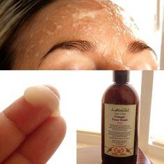 Vinegar Acne Face Wash