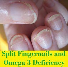 MediMiss: Split Fingernails and Omega 3 Deficiency