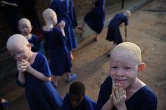 Tanzanie: des albinos persécutés et mutilés