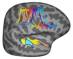 Our brains appear uniquely tuned for musical pitch - Neuroscience News Research Grants, Clinical Research, Medical Research, Music Pitch, Brain Mapping, Magnetic Resonance Imaging, Massachusetts Institute Of Technology, Rare Disease