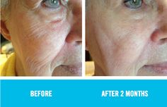 """""""I started using REDEFINE Regimen and have been blown away by my results in just two short months. I wish something like this had existed when I was in my thirties! These are by far the best skin care products I have used- and I have tried them all."""" Mary B. Using REDEFINE."""