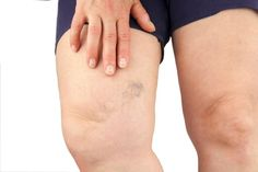 Vascular surgeons Spring Hill, FL - Vein specialists for varicose vein removal, spider vein treatment and all vascular surgery. Varicose Vein Remedy, Varicose Veins Treatment, Spider Vein Treatment, Nail Treatment, Vein Removal, Water Retention Remedies, Loose Skin, Weight Loss Surgery, Natural Treatments