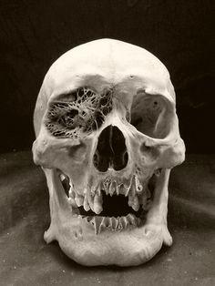 Deformed skull found at Mutter museum, Real Human Skull, Skull Reference, Human Oddities, 3d Studio, Thing 1, Skull And Bones, Creature Design, Skull Art, Oeuvre D'art