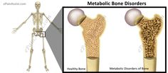 Diseases that come under Metabolic Bone Disorders are Osteoporosis, Osteomalacia, Paget's Disease etc. Know the causes, symptoms and treatment of Metabolic Bone Disorders. Metabolic Disorders, Metabolism, Bones, Dice, Legs