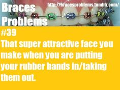 Braces Problems laughing so hard at this! I hate doing this in public because when I do people always stare at me like I hve problems. I don't have braces anymore though Braces Humor, Teeth Braces, Braces Problems, Braces Tips, Getting Braces, Brace Face, Braces Colors, Brace Yourself, I Can Relate