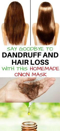 Mask for hair repair. Say goodbye to dandruff and hair loss with this mask.