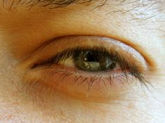 Home remedies for tired eyes! I did the olive oil and tea bags! I feel so much better :)