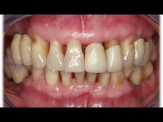 Natural Health Remedies, Home Remedies, Health And Wellness, Health Fitness, Perfect Smile, Dentistry, Natural Skin, Tips, How To Make