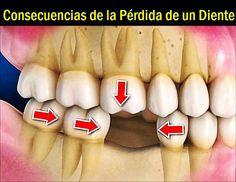 Vídeo: Consecuencias de la Pérdida de un Diente | Directorio Odontológico
