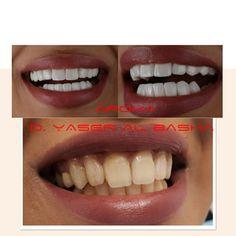 اقوي عروض مجمع اروكا الطبي بالرياض عيادة أسنان بالرياض 0545359682 عيادة جلدية بالرياض تقويم أسنان بالرياض حشو أسنان بالرياض تنظيف أسنان بالرياض تبيض أسنان بالري