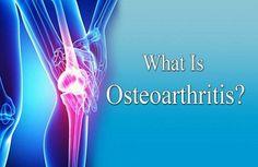 Osteoarthritis - Resurgens Orthopaedics