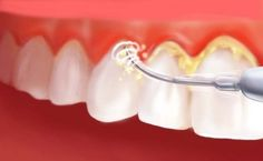 If you are searching Preventive Denstry, don't bother Axiss Dental care provides preventive dentistry services in Delhi, it is the advanced technique of helping you to keep a mouth all right, it helps caring for your teeth to keep them healthy. Dental Health, Dental Care, Oral Health, Preventive Dentistry, Plaque Removal, Dental Facts, Dental Implants, Oral Hygiene, Teeth Whitening
