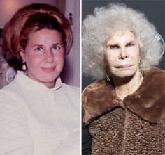 Duchess of Alba Plastic Surgery Before and After Pics - Face - liposuction plastic surgery Bad Celebrity Plastic Surgery, Bad Plastic Surgeries, Plastic Surgery Before After, Plastic Surgery Gone Wrong, Worst Celebrities, Operation, Lip Fillers, Liposuction, Donatella Versace