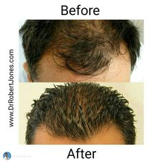 This patient had amazing success with his 3500 graft hair transplant done by Dr. Robert Jones at our Toronto hair transplant clinic Hair Facts, Start A Diet, Hair Transplant Surgery, Prevent Hair Loss, Hair Restoration, Hair Regrowth, Wet Hair, How To Make Hair, Healthy Hair