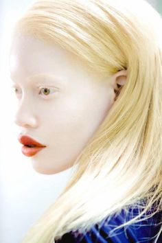 In a world where conventionality often tends to rule traditional standards of good looks, model Diandra Forrest is the very definition of uniquely beautiful. The gorgeous 24-year old African-American model was born and bred in the Bronx, and as a child with albinism, Diandra was often teased, until one day she was discovered by a...