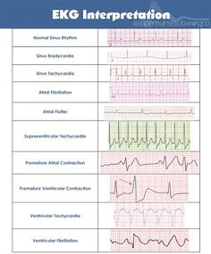 EKG Interpretation