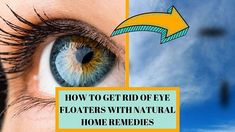 Check our new video Today is about eye floaters and how to get rid of them Link in the Bio Natural Home Remedies, How To Get Rid, Floaters Eye, Eye Drops, Eyes, Nature, Poster, Link, Makeup