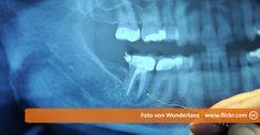 In meinem Live Test zum Zähne selber heilen, versuche ich bereits seit einem Jahr meine Zähne auf natürliche Weise wieder herzustellen, Schmerzen los zu werden und Löcher zu stopfen. Erfahre mehr in meinem Beitrag