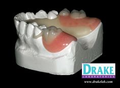DuraTek Flexible Partial with Tooth Colored Clasps.  http://drakelab.com/drake-products/partialdenture/duratek-featuring-duracetal/