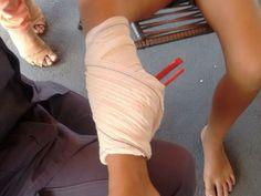 #News  Peça de balanço perfura perna de criança em Montes Claros