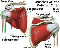 What is it? First thing you need to know about this injury is the name. This is commonly incorrectly referred to as the rotator cup. The four muscles and tendons that are responsible for keeping th…