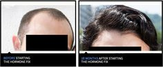 Before and after hair loss nicehair