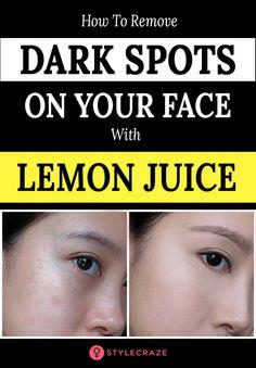 Dark Spots Under Eyes, Cream For Dark Spots, Lighten Dark Spots, Brown Spots On Face, Dark Spots On Skin, Lemon To Lighten Skin, Lemon Juice For Skin, Lemon On Face, Lemon Uses For Skin