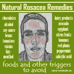 Natural Skin Remedies Natural Rosacea Remedies: foods and other triggers to avoid Natural Remedies For Rosacea, Rosacea Remedies, Home Remedies For Acne, Sleep Remedies, Natural Acne Treatment, Skin Treatments, Rosacea Causes, Acne Rosacea, Natural Treatments