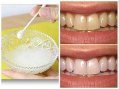 11 Melhores Imagens De Clareador De Dentes Caseiro Natural