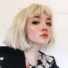 This teenage girl is encouraging others to show off their acne These gorgeous ac.,This teenage girl is encouraging others to show off their acne These gorgeous acne selfies are going viral after a user shared a foundation-free shot . Teenage Hairstyles, Hairstyles For School, Girl Hairstyles, Easy Hairstyles, Casual Hairstyles, Popular Hairstyles, Aesthetic People, Aesthetic Girl, Girl With Acne