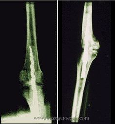 """2,600 year old orthopedic implant in the bones of an Egyptian priest,Usermontu.The screw Usermontu's surgeon implanted into his bones was over 9 inches in length(poor fellow!)It looks as if he lost the ability to bend the limb.Still,I have seen similar cases of permanently impaired mobility after """"modern""""orthopedic surgeries! My hat is off to the surgeons who achieved this feat in that era-without modern anesthesia,before germ theory emerged,without modern antibiotics-brave souls indeed!"""