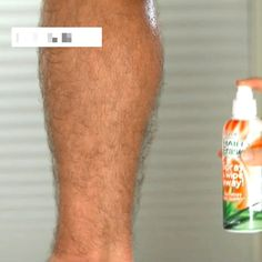 This is the easiest, fastest way to remove hair! 🔥 Just Spray & Wipe The Hair. - This is the easiest, fastest way to remove hair! 🔥 Just Spray & Wipe The Hair Away! Shop Yours > - Hair Removal Spray, Skin Tag Removal, Permanent Hair Removal, Hair Removal Cream For Men, Natural Hair Mask, Natural Hair Styles, Natural Beauty, Natural Hair Removal, Ugly Hair