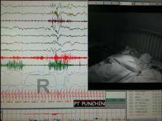 Sleep CentersDisorders - BayCare