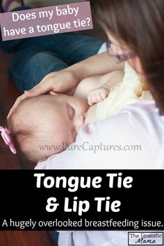 Tongued Tied Baby. Tongue tie is a hugely overlooked breastfeeding issue, the article includes warning signs to help you identify it. GREAT READ. #breastfeeding