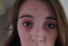 Lux Life | UK Lifestyle Blog: My Struggle With Eye Eczema.  Dr Organics Manuka Honey Rescue Cream